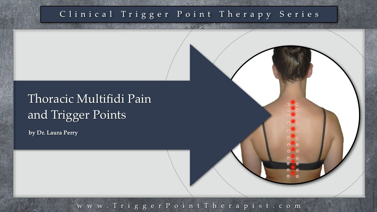 thoracic multifidus pain and trigger points youtube