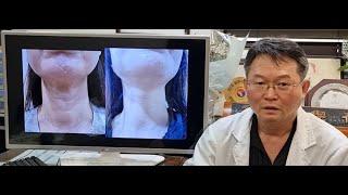 안면거상 수술 시 목 거상이 중요한 이유