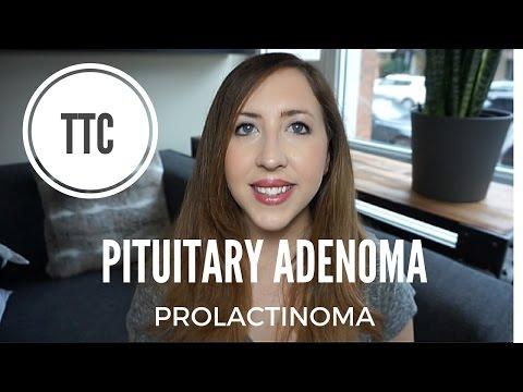 PITUITARY ADENOMA - PROLACTINOMA - TTC