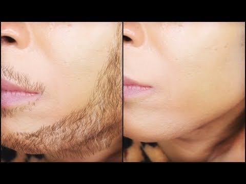 How to remove thick facial hair permanently at home
