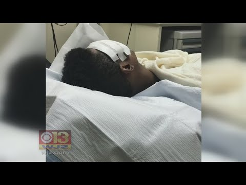 Another Victim Randomly Attacked By Group Of Teens At Baltimore's Inner Harbor