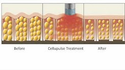 How Cellupulse Smoothes Cellulite
