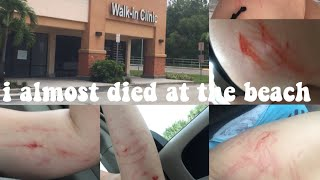 the day i almost died | story time *video and picture proof*