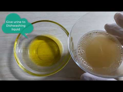 Pregnancy Test At Home With Dishwashing Liquid - Home Pregnancy Test Dishwashing Liquid