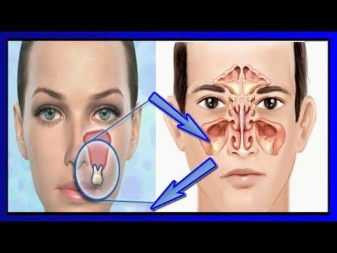 Как связаны зубы и глаза