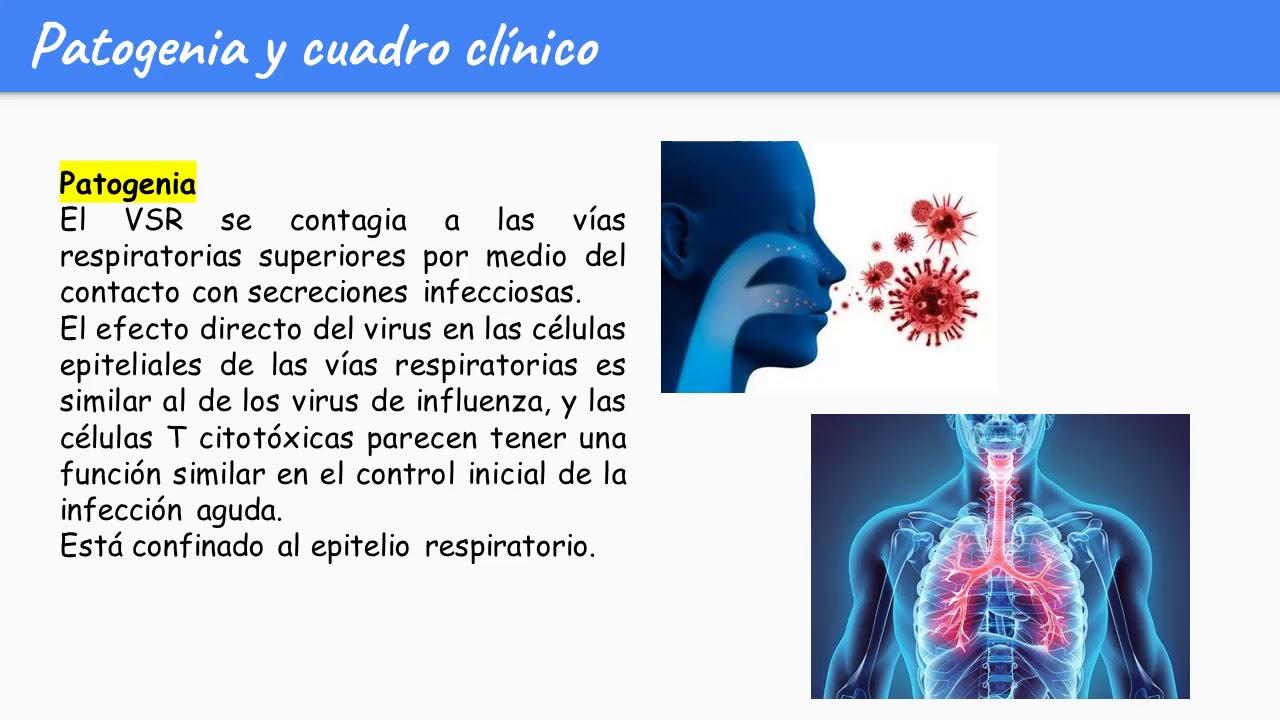 virusi respiratori