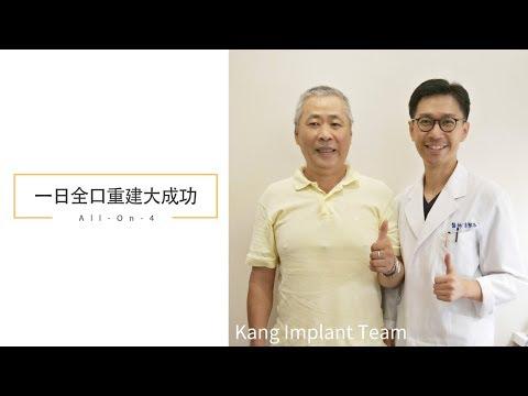 康智為醫師專業牙科醫療團隊『All-On-4一日全口重建 案例分享』 不可思議的磁場改變~!