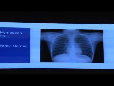 casos-clínicos-de-neumonología