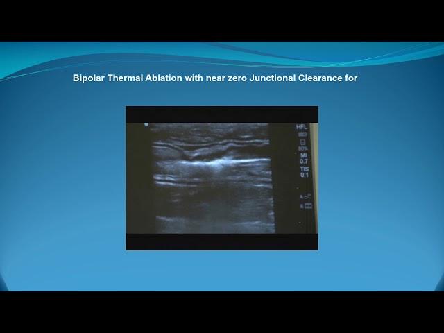 Proximity of Junctional Clearance for Thermal Ablation - Société Française de Phlébologie