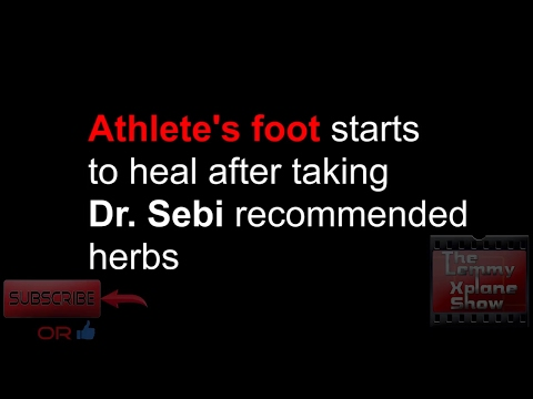 Athletes foot heals after taking these herbs recommended by Dr. Sebi