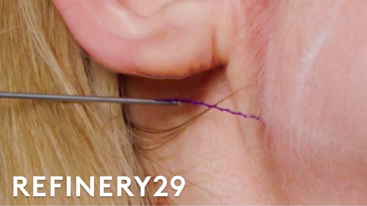 I Got A Non-Surgical Facelift | Macro Beauty