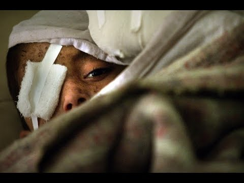 TIMELINE: The human cost of war in Afghanistan