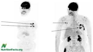 Domácí mazlíčci a lidský lymfom