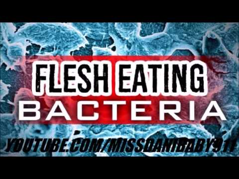 FLESH EATING BACTERIA: The Gulf Is Getting WORSE (Part 2)  How To PROTECT YOURSELF...