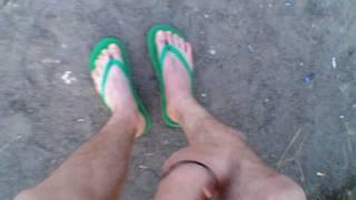 Перелом лодыжки со смещением. Разработка ноги(14 июля 2016., 2016-07-14T19:28:35.000Z)
