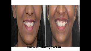 Dental implants with smile designs  in india