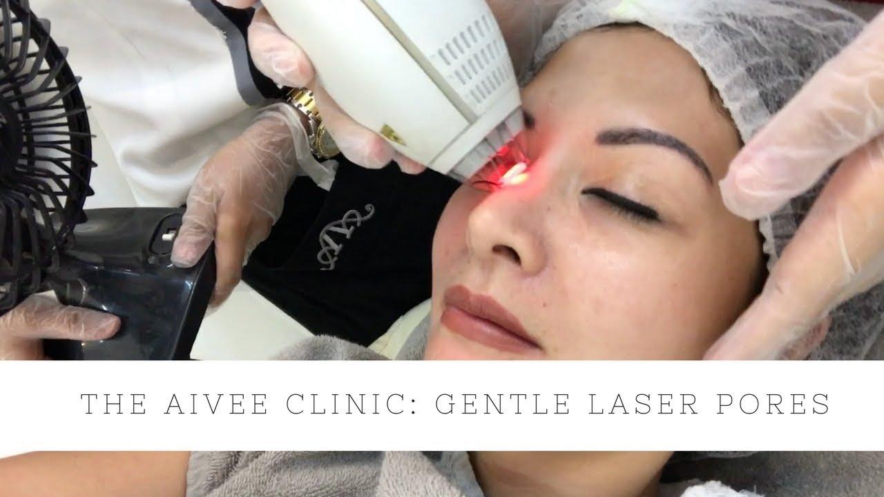 laser glam clinic sundbyberg