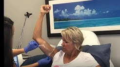 Coolsculpting Fat Reduction on Arms in Bucks County, PA at Healthy Solutions Medspa