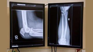 Бокс после перелома руки(У нас Вы можете заказать индивидуальную программу тренировок по интернету: http://atletizm.com.ua/personalnyj-trener/uslugi ..., 2014-04-02T15:32:23.000Z)