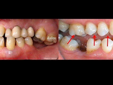 ถอนฟัน ฟันล้ม ต้องใส่ฟันปลอมไหม