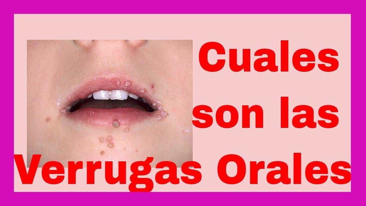 Causas de las verrugas en la lengua