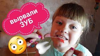 Вырываем молочный зуб дома ниткой.