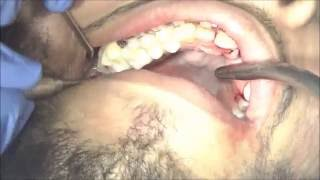 Cryer elevator technique for upper wisdom tooth extraction