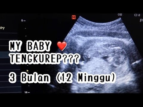 Perkembangan Janin 3 Bulan 12 Minggu Usg Cerita Kehamilanku Part 3 Youtube