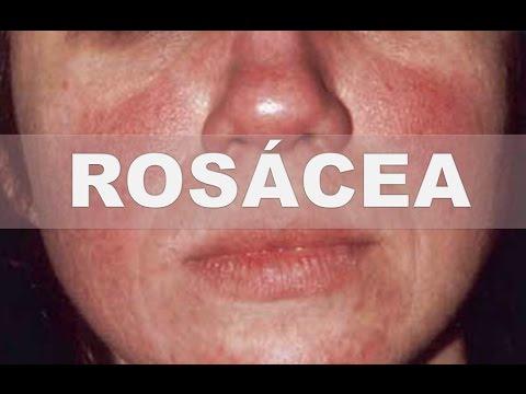 ? Remedios caseros para la rosácea - Como tratar las manchas rojas o cachetes rosados