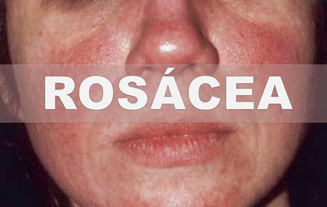 Roja para la cara remedios caseros