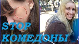 видео Комедоны на лице (закрытые, открытые): причины и лечение, фото