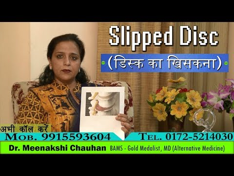 Slipped Disc - Causes, Symptoms, Ayurvedic Approach, Herbal Treatment, Diet & Lifestyle - 동영상