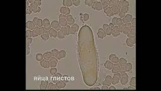 Диагностика паразитов по капле живой крови. ЗОЖ, Концепция здоровья от Coral Club.
