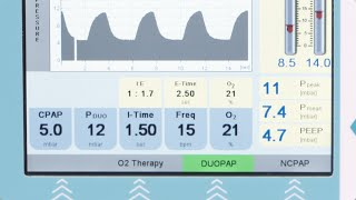 fabian Therapy: DuoPAP nasal continuous positive airway pressure on two pressure levels