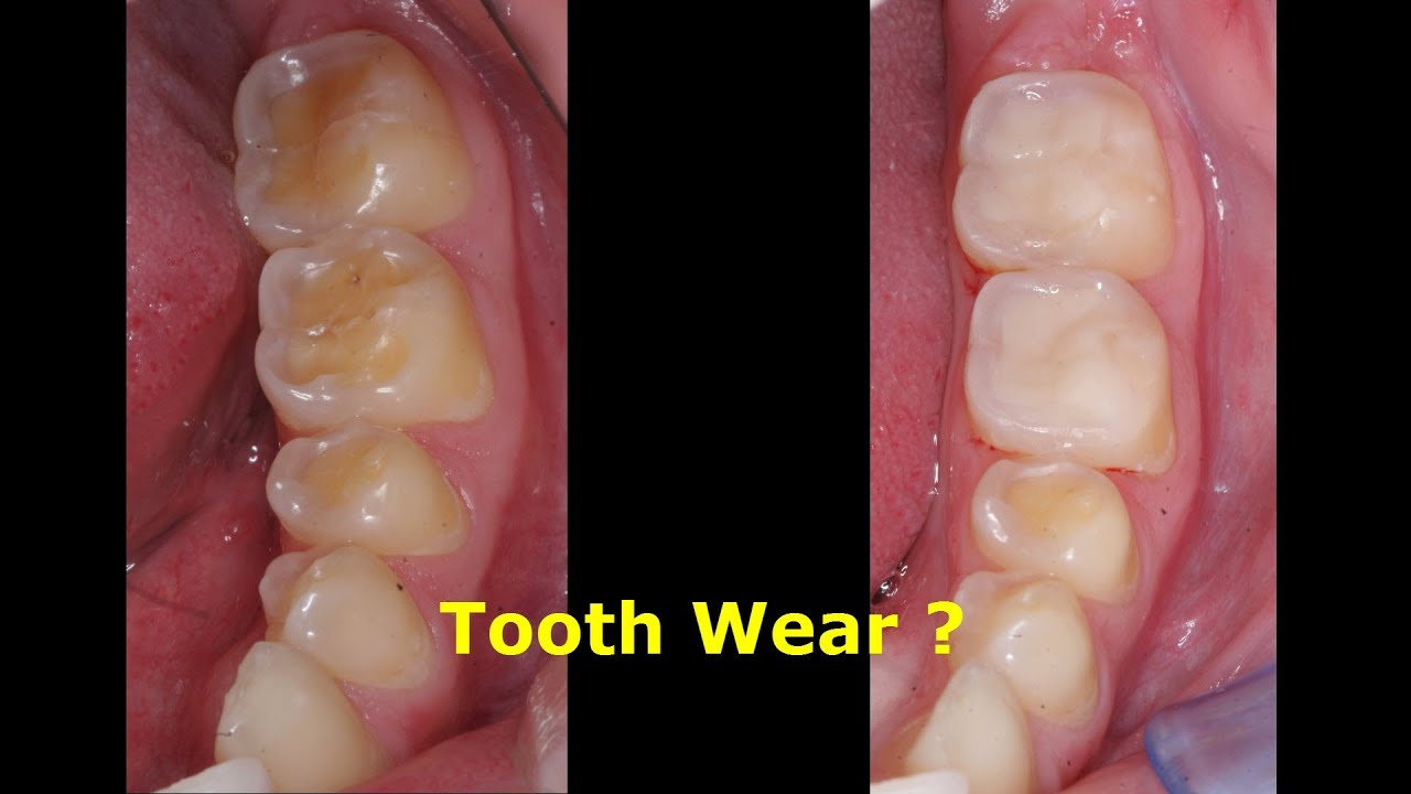 tooth wear attrition erosion abrasion cerec omnicam and