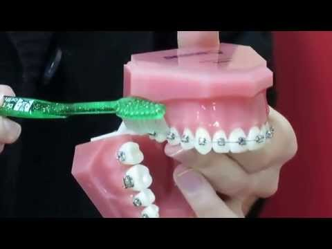 Orthosmile - How to brush and floss your braces