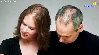 الصلع الوراثي عند السيدات أسبابه وطرق علاجه