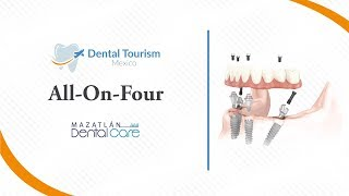 All on Four Mazatlan - Dental Tourism Mexico