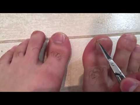 Как обрезать ноготь на ноге чтобы не врастал