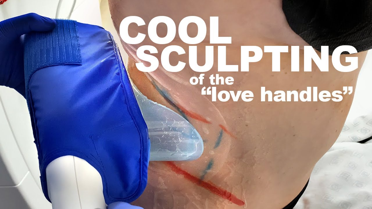 CoolSculpting of the Flanks | West End Plastic Surgery