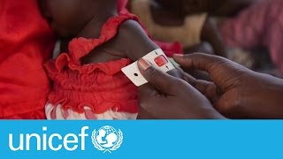 Catastrophe is looming - South Sudan nutrition expert on famine I UNICEF