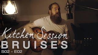 Chris Kläfford - Bruises, Kitchen Session [S02-E02]