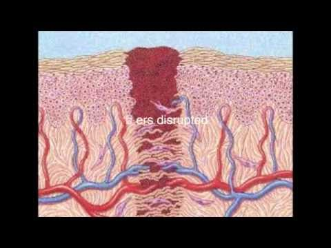 Sperm Retrieval Techniques from YouTube · Duration:  5 minutes 59 seconds