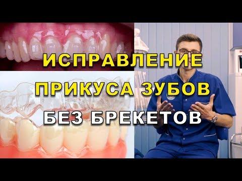 Выровнять зубы без брекетов. Исправление прикуса капами в Киеве
