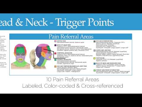 Pain Referral Areas Headache And Neck Trigger Point Chart Temp