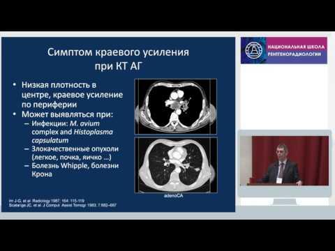 Рентгенодиагностика туберкулеза у взрослых
