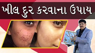 Pimples, What are Pimples, Solution for Pimples / ખીલ શું છે ? , ખીલ દુર કરવાના ઉપાય  |  in Gujarati