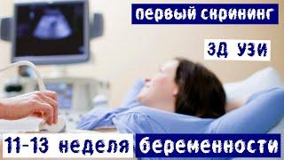 11-13 неделя беременности | Дневник беременности | Первый пренатальный скрининг | 3D УЗИ