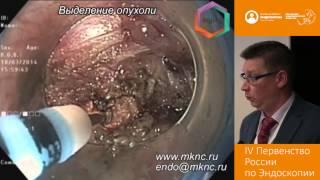 Удаление ГИСО желудка методом эндоскопической туннельной резекции