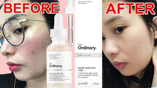 HOW TO USE THE ORDINARY LACTIC ACID 10% + HA | REVIEW | Galy Gascon